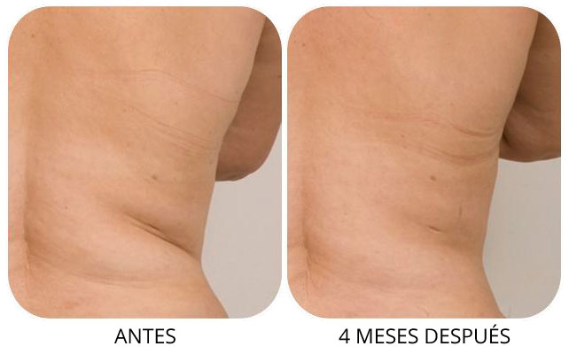 coolsculpting-3-4