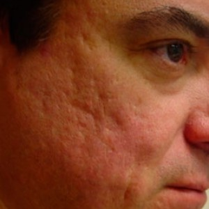 cicatrces_acne_antes-fraxel