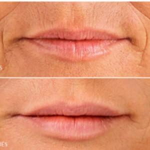 rellenos faciales multilaser