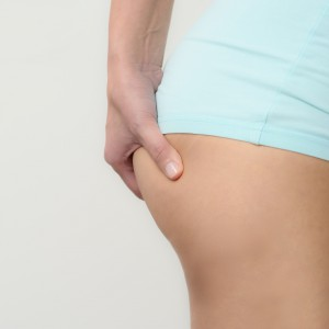 coolsculpting criolipilisis
