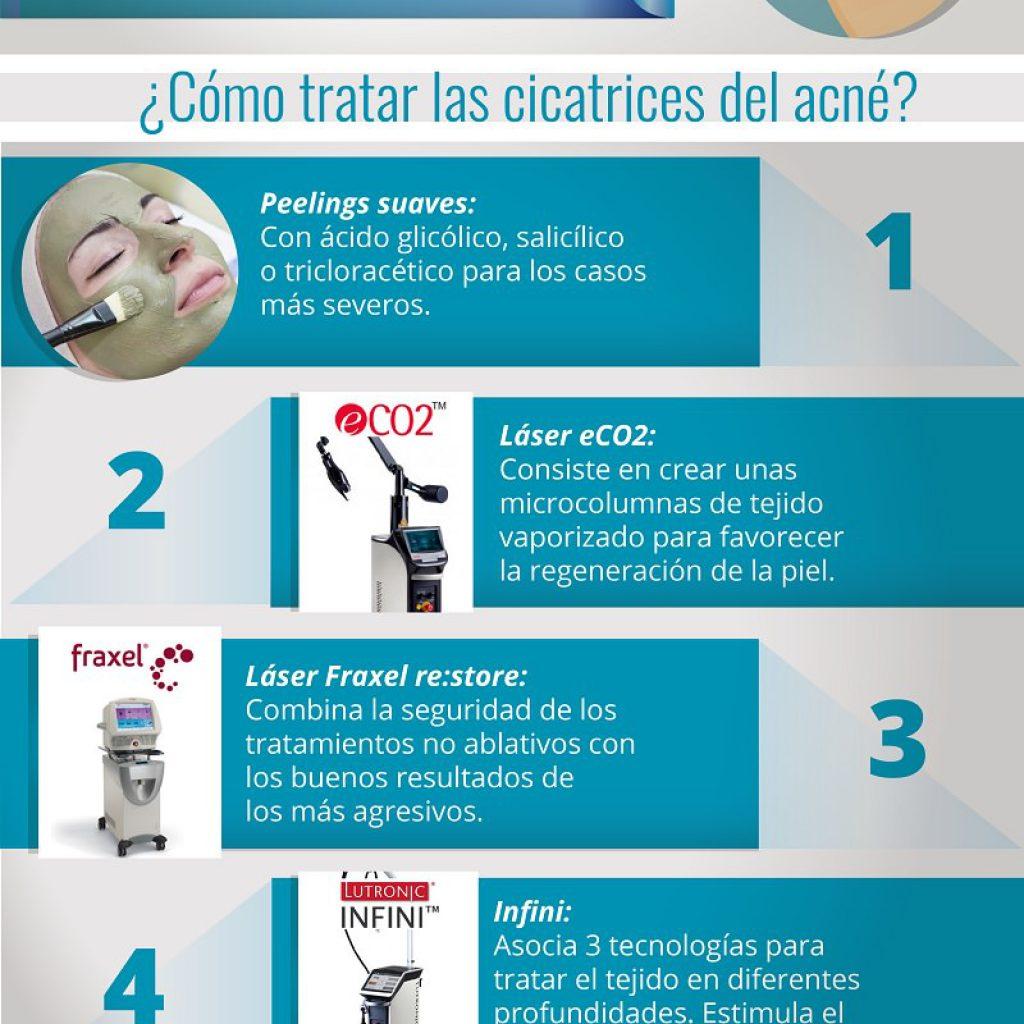 como eliminar cicatrices acne - clinica multilaser