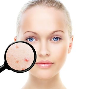clinica para eliminar cicatrices del acne madrid
