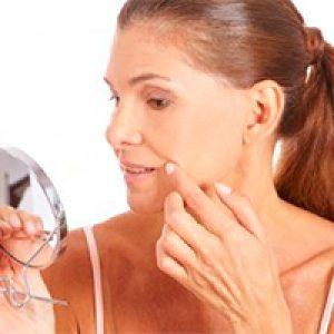 Mejor tratamiento del acné en adultos 5
