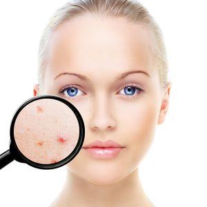 Cuida tu cara este verano con Spectra Peel - Clínica dermatológica Madrid