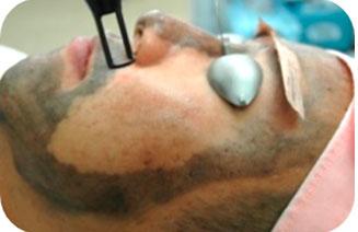 Desarrollo del tratamiento facial con Spectra Peel - Clínica MultiLáser