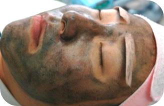 Cómo es el tratamiento con Spectra Peel - Clínica dermatológica Madrid