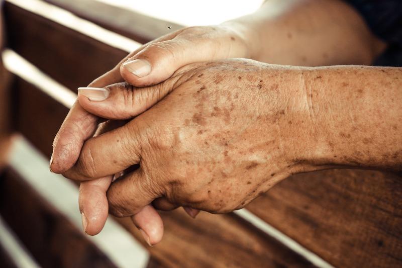 manchas en la piel clínica dermatológica Madrid