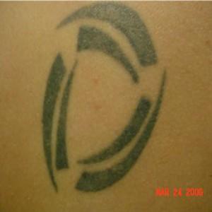 eliminación de tatus en madrid