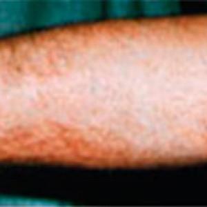 eliminación de tattos en madrid
