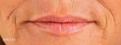 antes rellenos labios