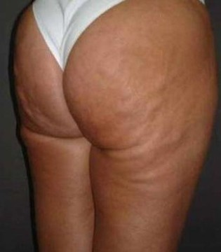 tratamiento grasa localizada antes