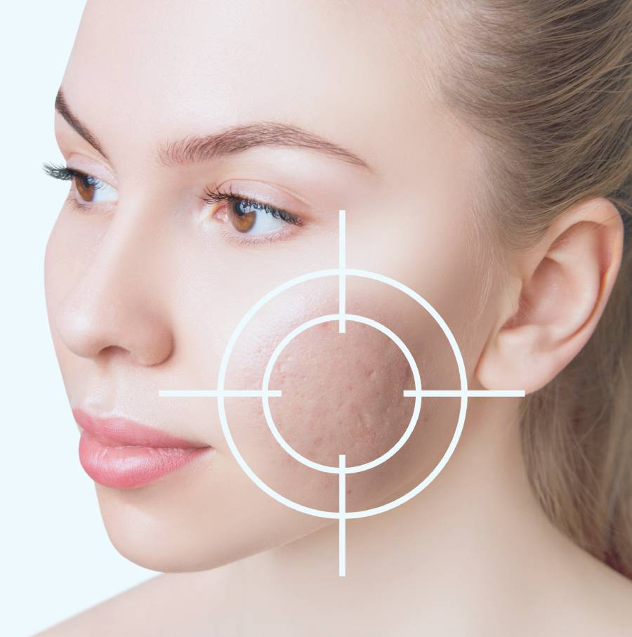 eliminar cicatrices acné
