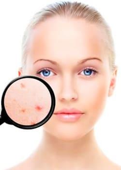 Corrige las lesiones pigmentadas y recupera el tono uniforme de tu piel