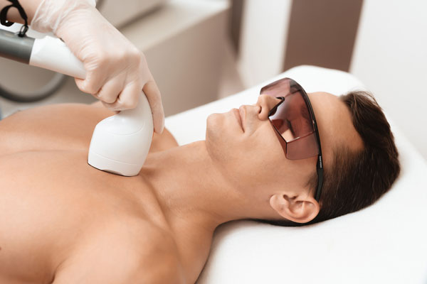 depilación láser masculina en madrid