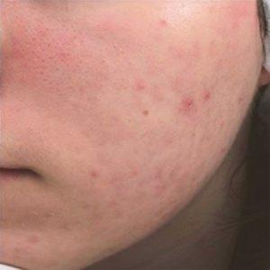 despues-acne-300x300