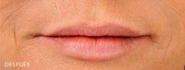 después rellenos labios