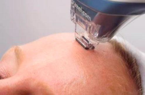 tratamiento láser fraxel