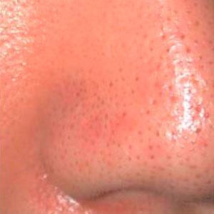 poro-dilatado-antes-black-peel