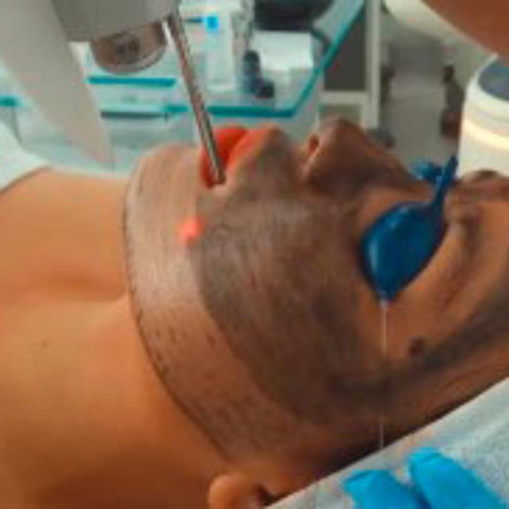 tratamiento-black-peel-999x999