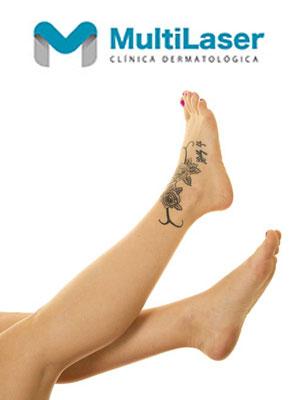 catálogo eliminación de tatuajes con láser