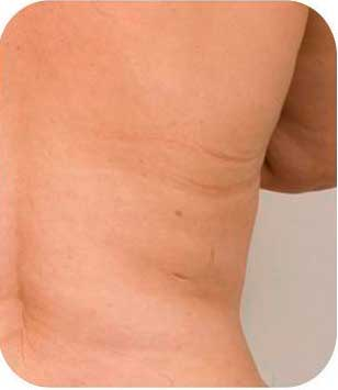coolsculpting 2 despues