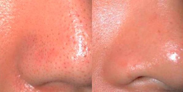 el mejor tratamiento para eliminar el acné, tener una piel suave, afinar y cerrar poros