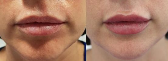 relleno y perfilado de labios ácido hialurónico madrid