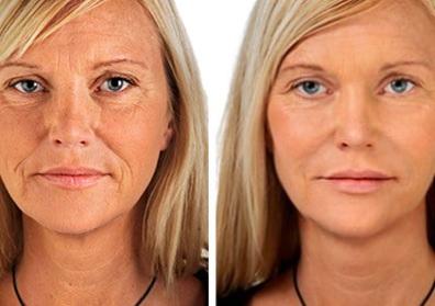 rellenos faciales para rejuvenecer y combatir la flacidez