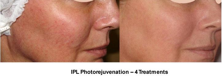 tratamiento para recuperar la piel del verano